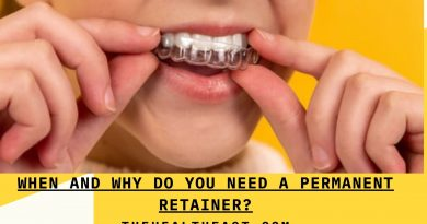 when and why do you need a permanent retainer